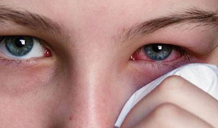 tia UV gây đục thủy tinh thể