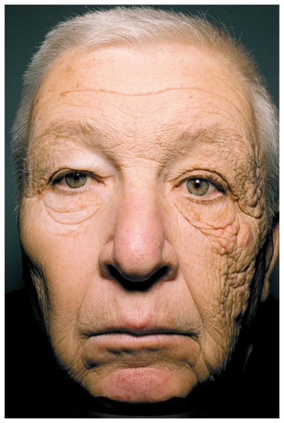 Ảnh về tác hại của UV